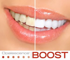 boost teeth whitening